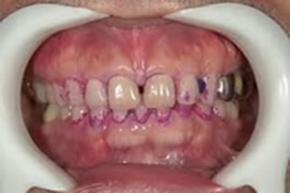 歯垢染色剤チェック
