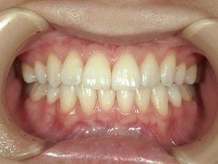 歯 を 白く したい